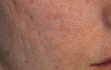 Joue avec acné avant traitement